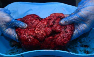 cápsulas de placenta