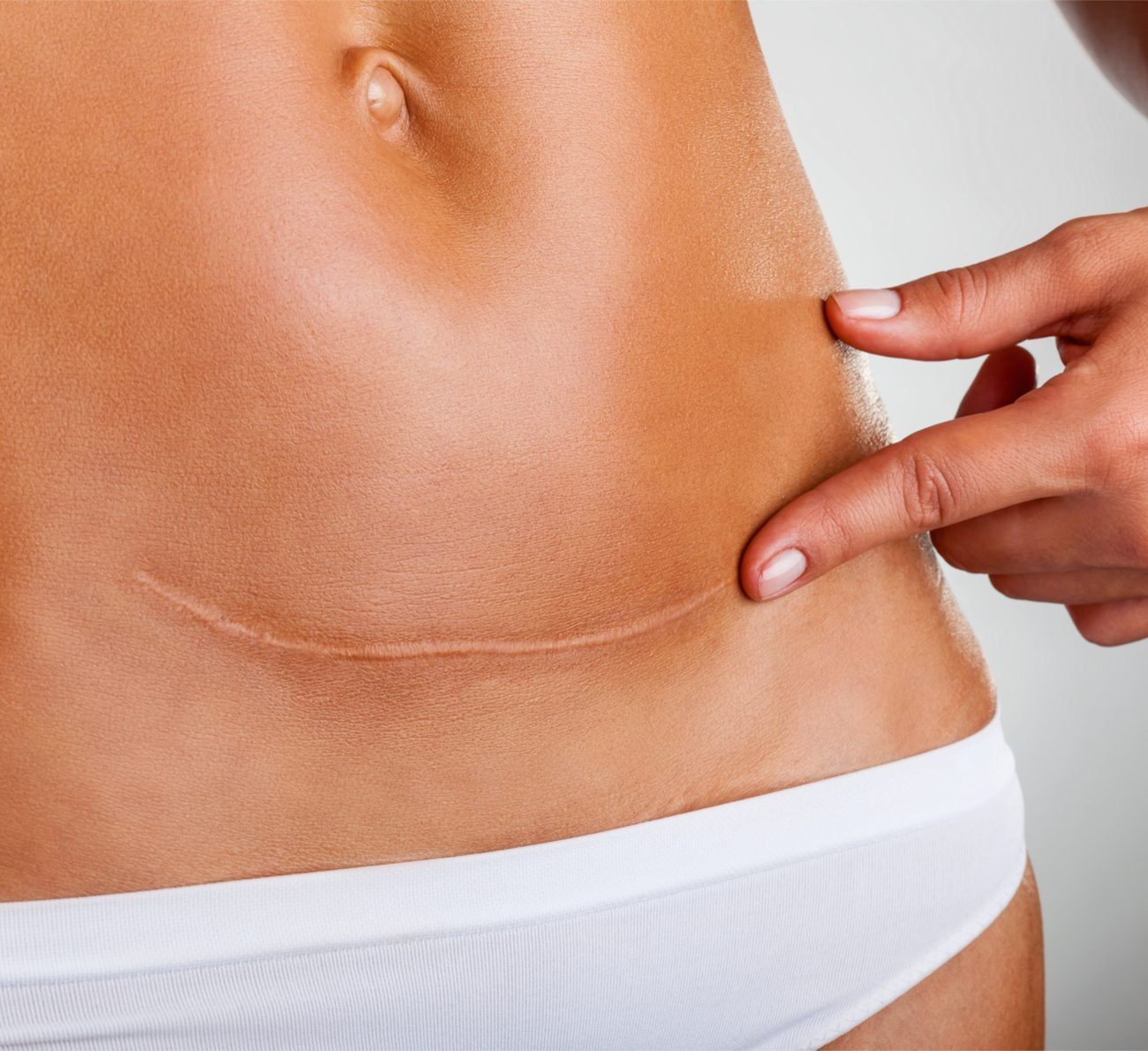 cicatriz da cesárea