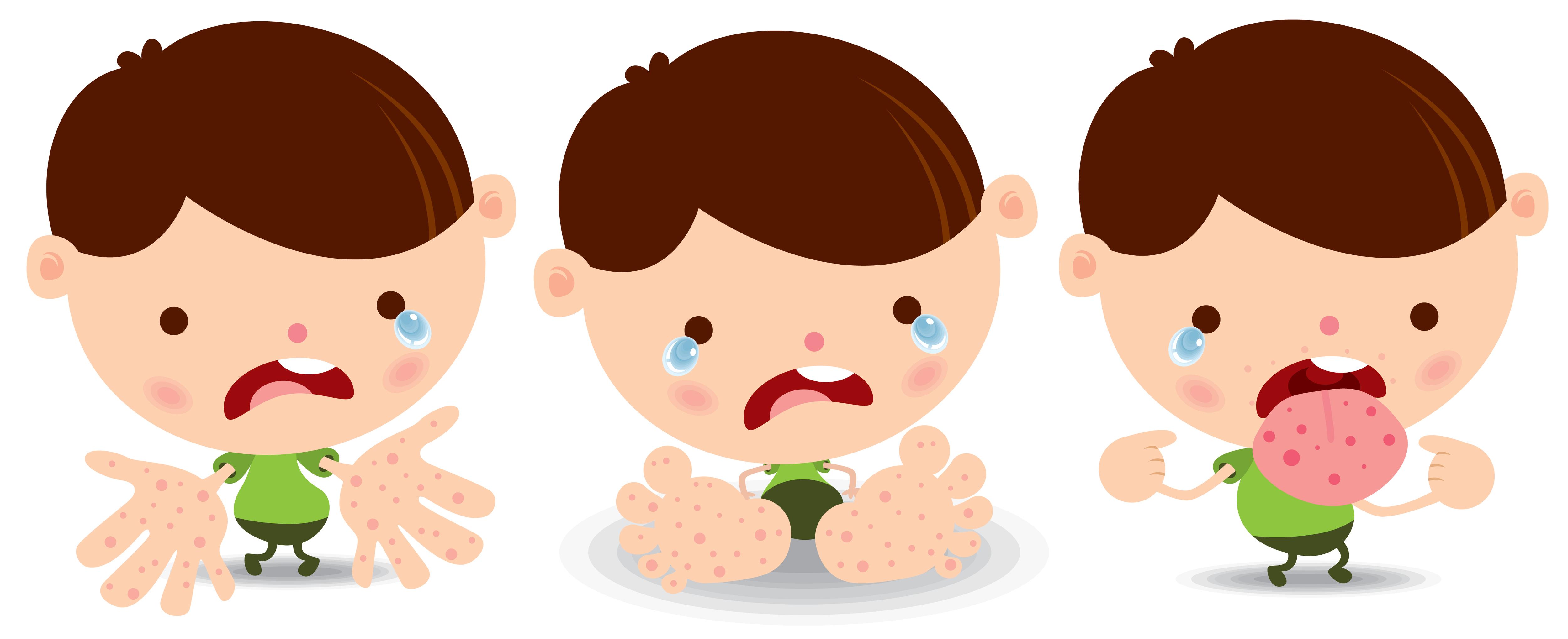 doença mão-pé-boca