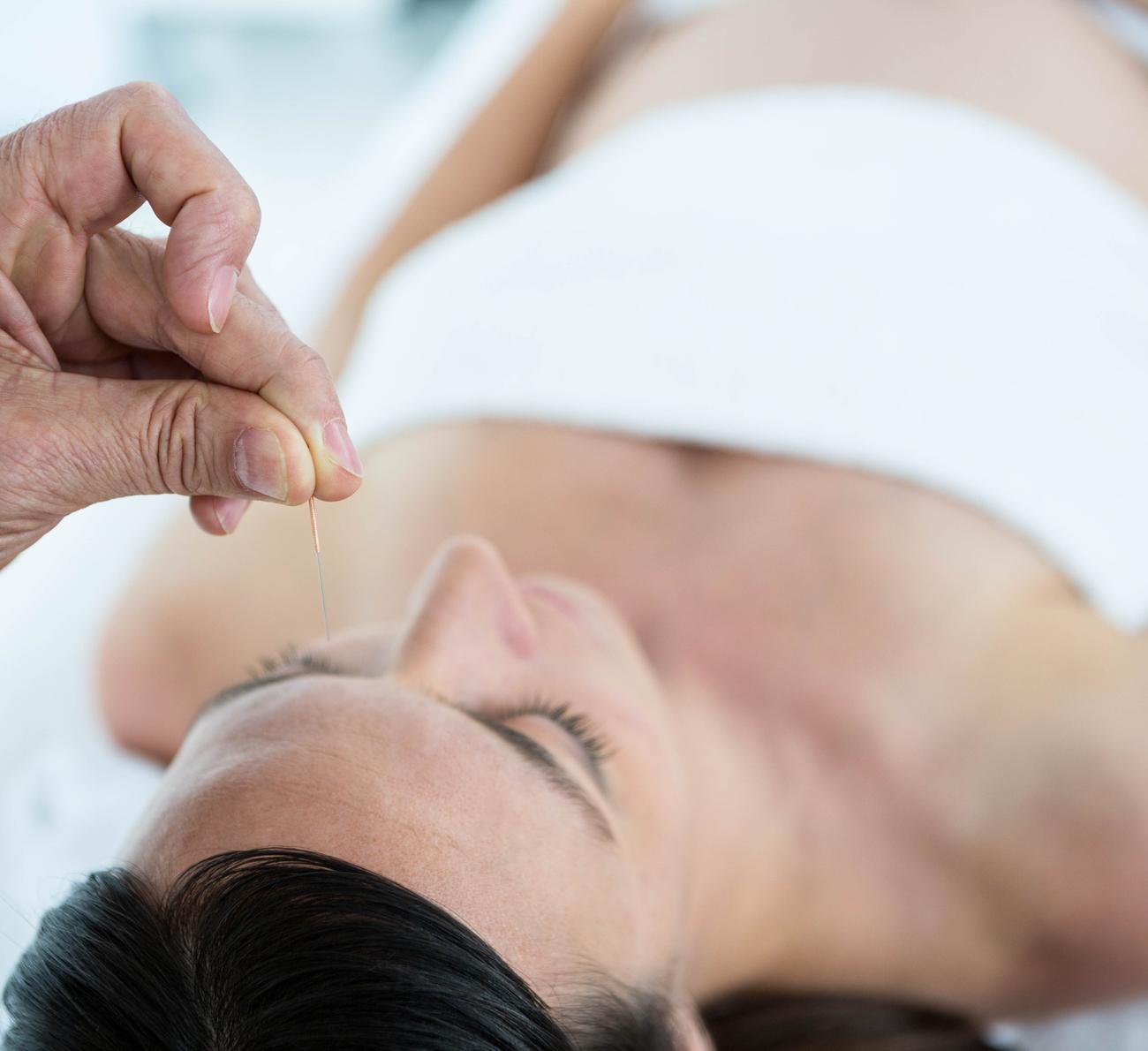 acupuntura na gravidez