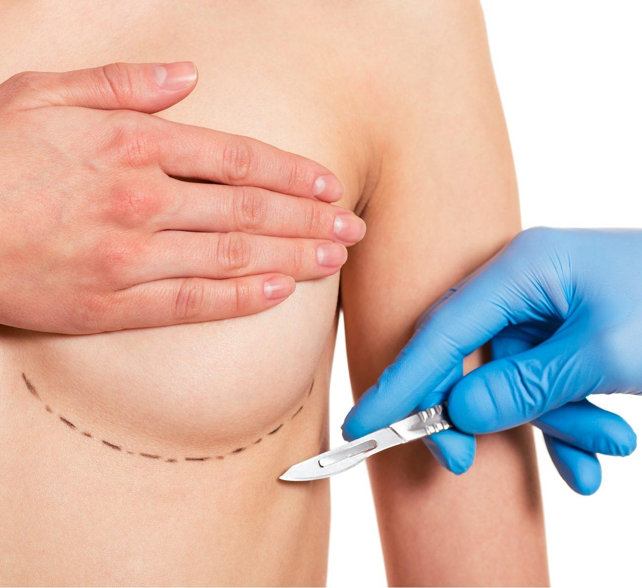 amamentação após mamoplastia