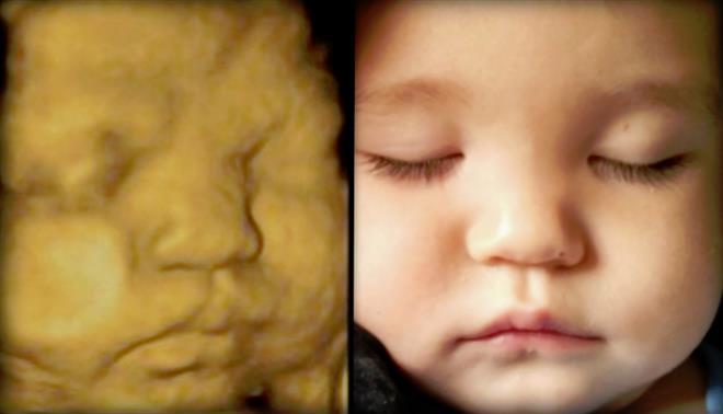 ultrassom 3D